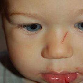 Gedwongen prikpil voor 'foute ouders' (2 reacties)